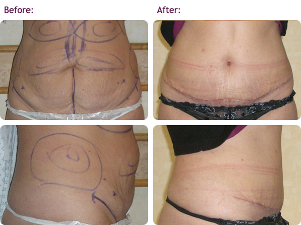 abdominoplasty-1bigger