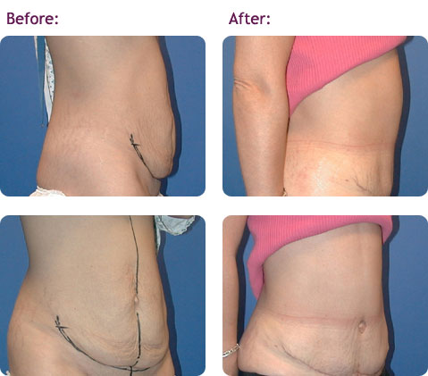 abdominoplasty-5bigger