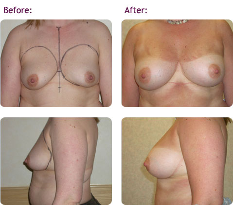 breast-augmentation-10big