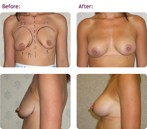 breast-augmentation-11big