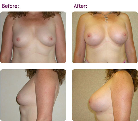 breast-augmentation-12big