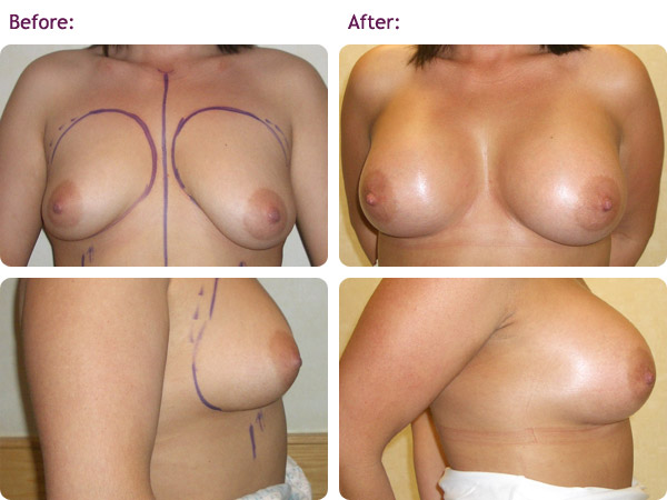 breast-augmentation-1big