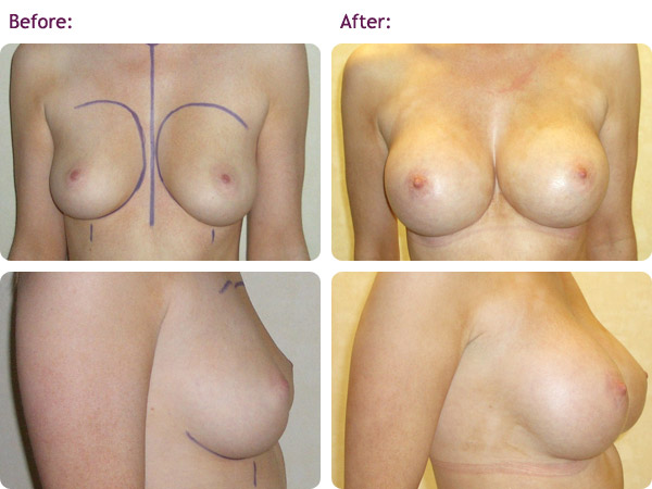 breast-augmentation-4big