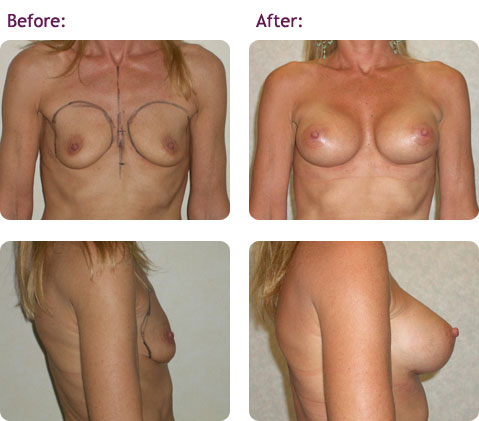 breast-augmentation-6big