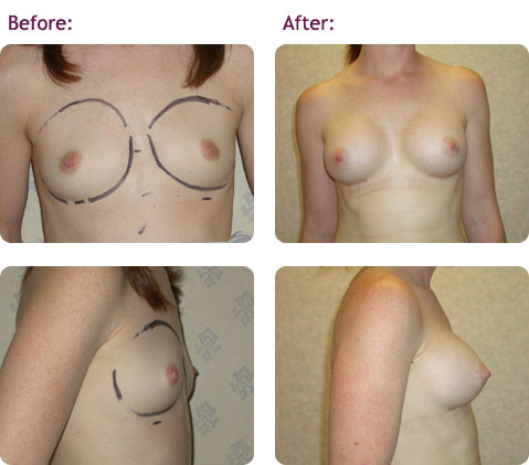 breast-augmentation-7big