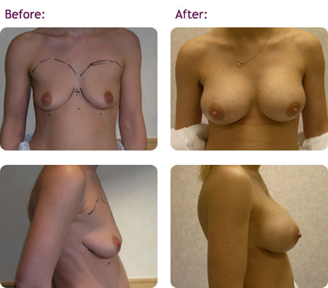 breast-augmentation-8big