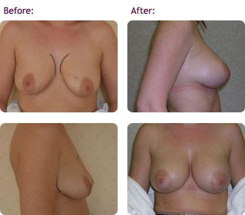 breast-augmentation-9big