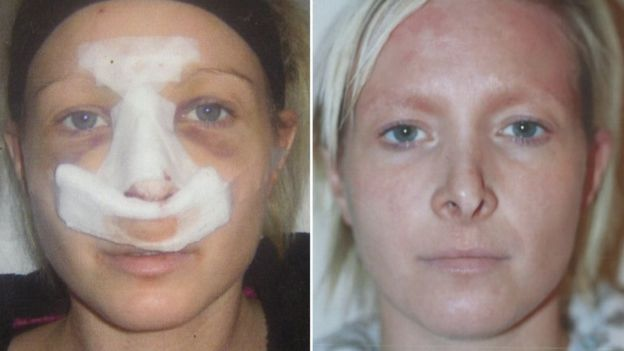 """My doctor flew off when cosmetic surgery went wrong"""