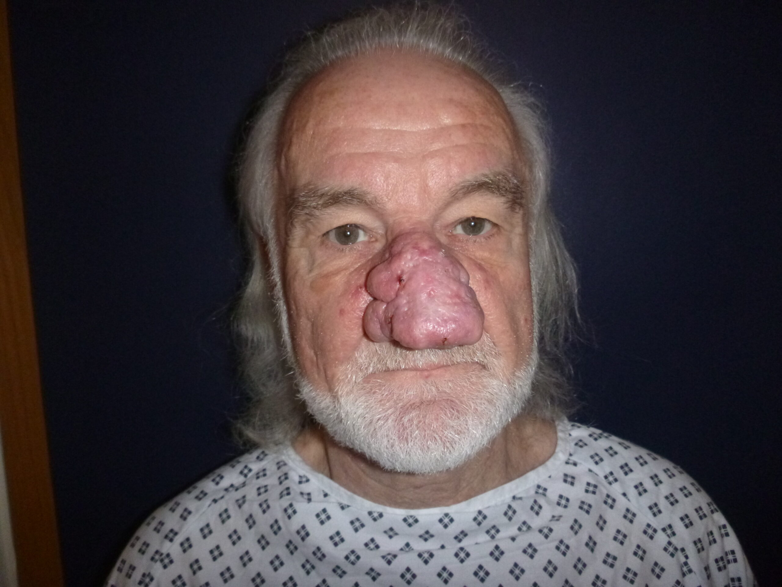 Front pic of patient pre Rhinophyma Treatment