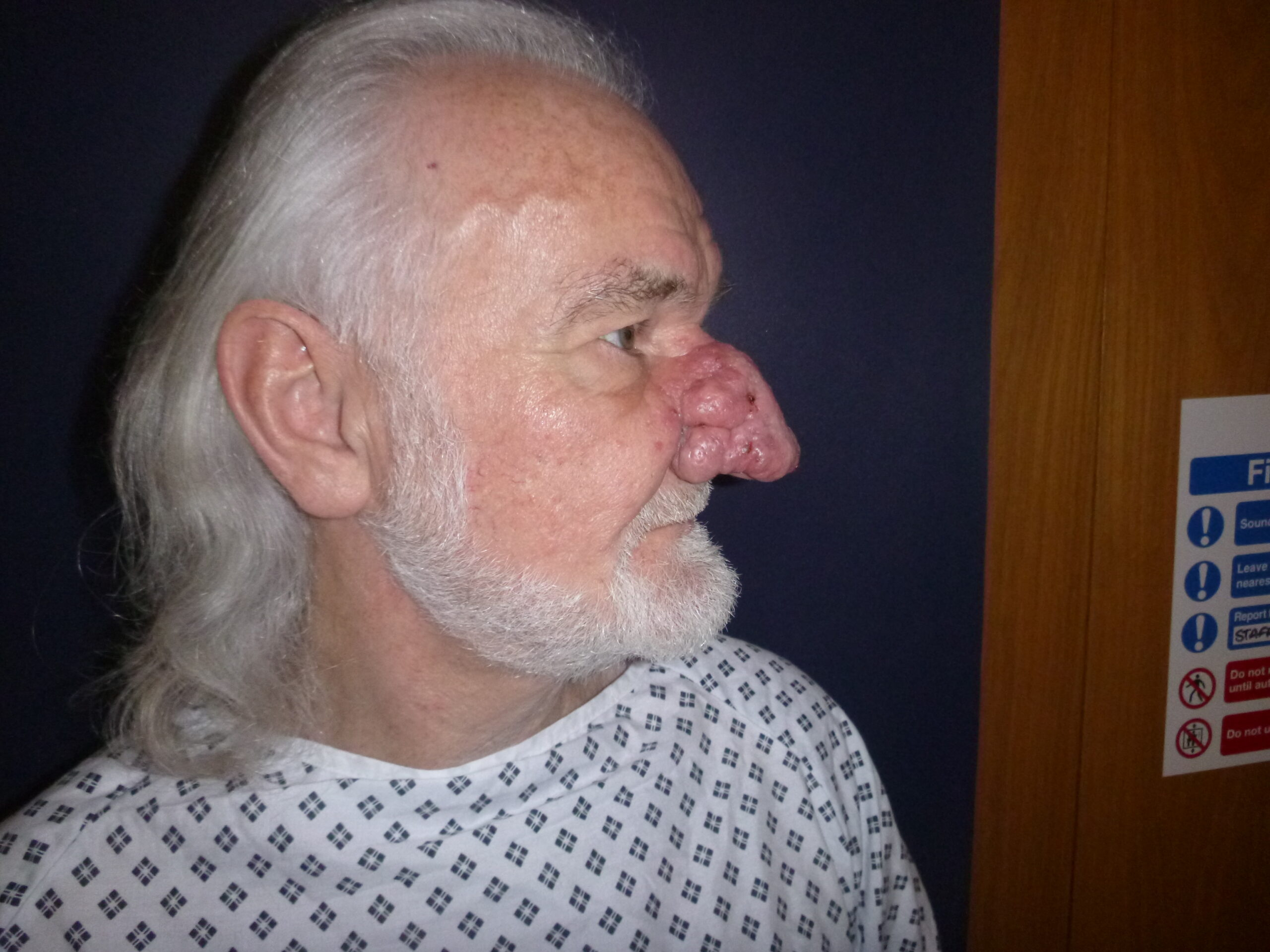 Profile pic of patient pre Rhinophyma Treatment